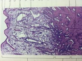 Endomet. Lining of Uterus