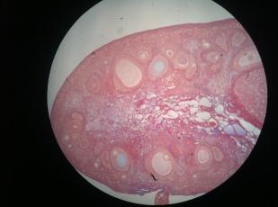 Ovary1