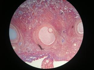 Ovary2