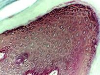 Keratinized Stratified Squamous E.T. (Thin Skin)