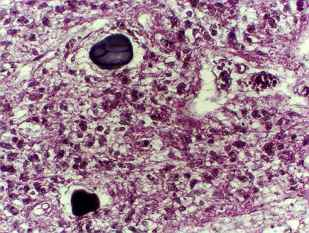 PINEAL GLAND (EPITHALAMUS)