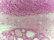THYROID/PARATHYROID GLANDS