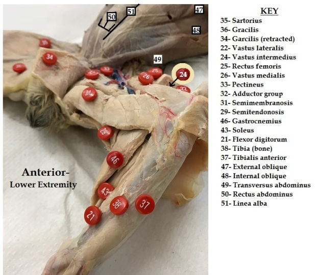 anterior-abdomen-and-lower-extremity