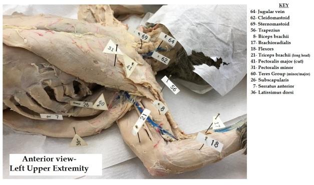 anterior-view-upper-extremity